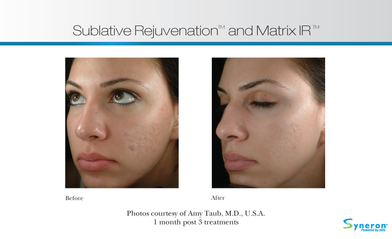 Sublative acne