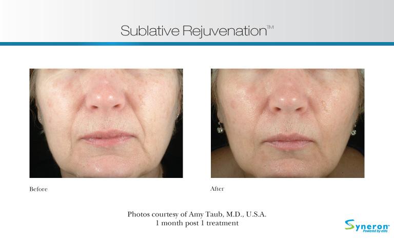 Sublative wrinkle