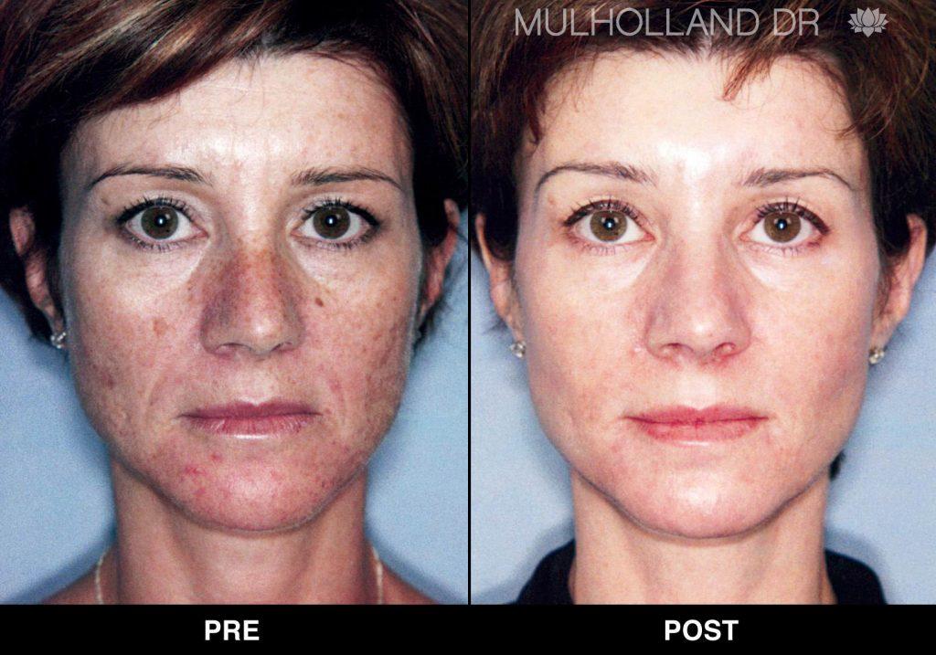 triniti_001.3_Dr.Mulholland_3-months-post-5-triniti-treatments